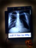 X-Rays of Pol Pot's Carcass...