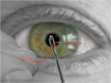 C59 - Eye(s) by Marc (Cynops)