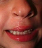 The lip enchancement should remove some scarring.