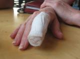 sarah's injury 1