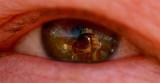 Self Portrait in an Eyeball