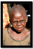 Scrunched Face, East Province, Rwanda