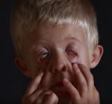 Jacobs Eyes