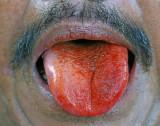 betel tongue (aka moma mouth)