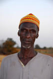 Man in Niger with some kind of eye disease