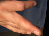 almost blister, befor medical care, we need proof of insurance,then get you pre-certified, that might take a few weeks