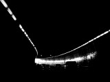 Lines in a Tunnel