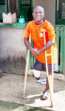 Leprosy Survivor