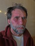 LE VISAGE DE LA MIGRAINE ET ALGIE / THE FACE OF MIGRAINEAlgie vasculaire de la face / après la crise de +/- 5:00 ...