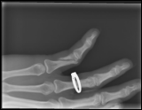 fractured pinky -  10_45_55 PM 7_7_2013 001.png