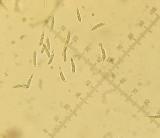 Hymenoscyphus scutula 002 spores 2015-11-3.JPG