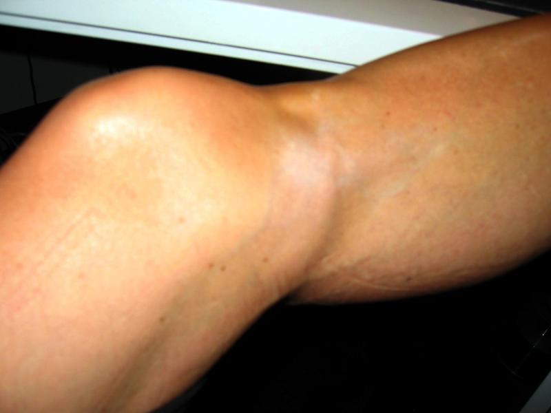 Skin, bone, tendons, vessels, hypopigmentation.  No fat left.  This is likely permanent.