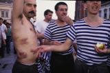 Bruised prisoner