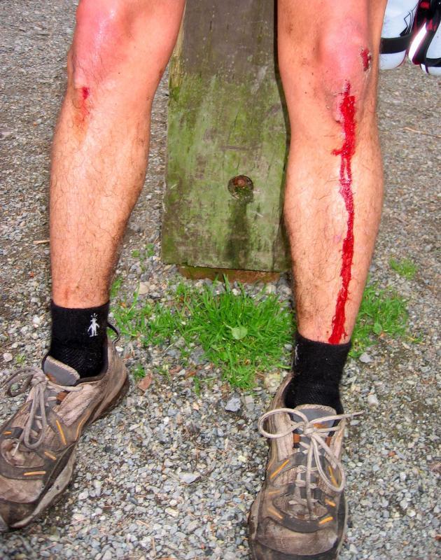 Tony bleeding