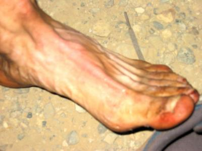Mike Mosers foot