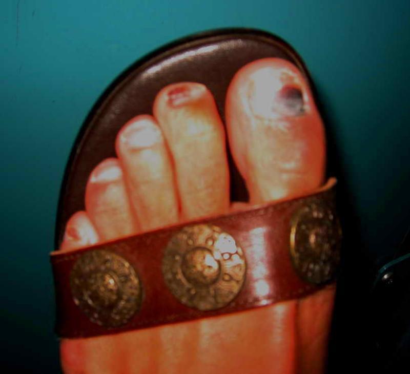 Pre-race toenails