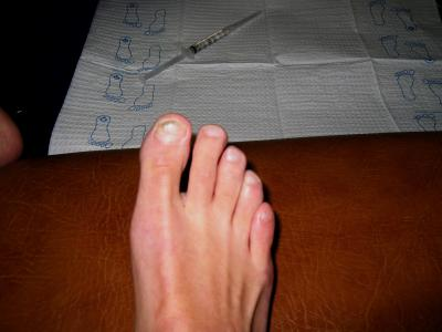 Ingrown and painful. Ive had to have the big toenail removed twice in the past.  This time its for good!