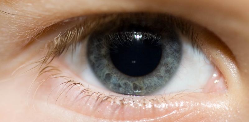 Kallas Eye