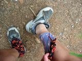Ankle sprain:  Lisa