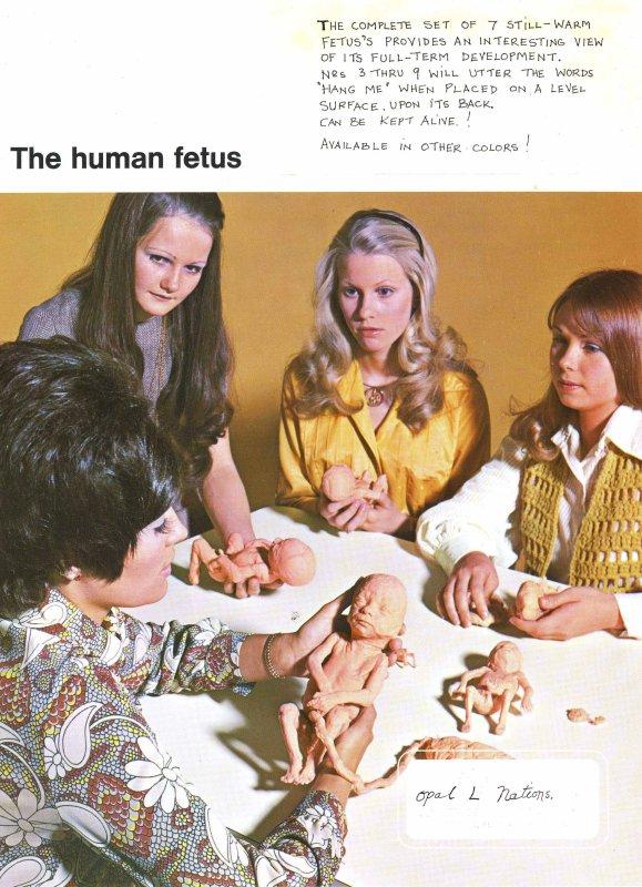 Fetal Study