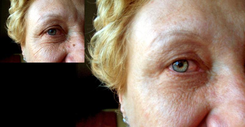 Enhancements - Remove Wrinkles