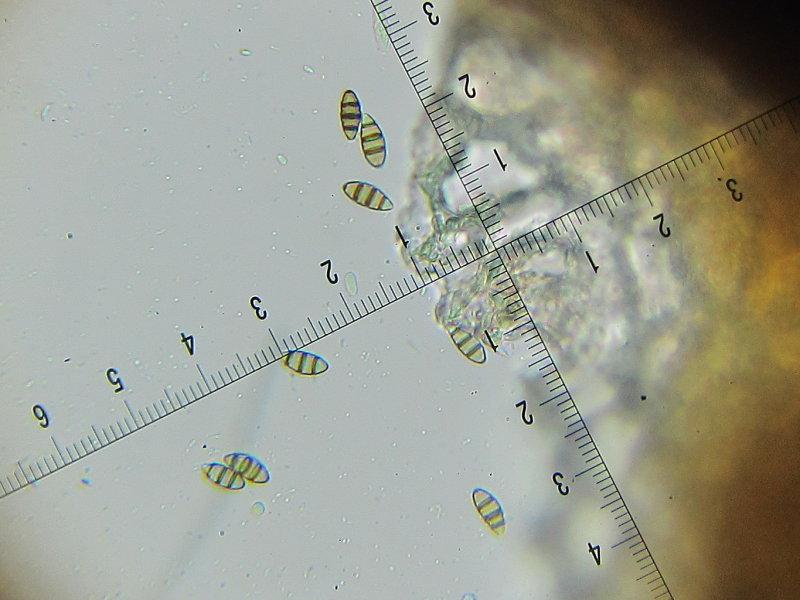 Discostroma corticola 002 conidia 7-4-2016.JPG