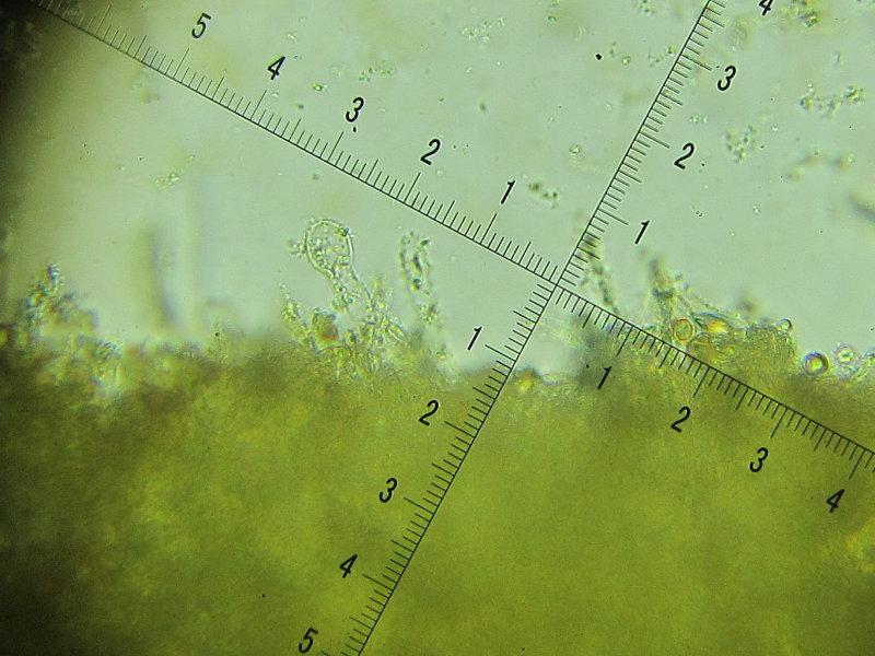 Hebeloma hetieri 005 narrowly clavate & swollen-headed cheilocystidia 2017-10-21.JPG