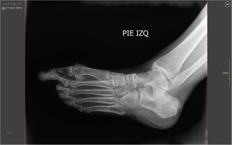 Jackies Ankle - no broken bones, just a bad sprain