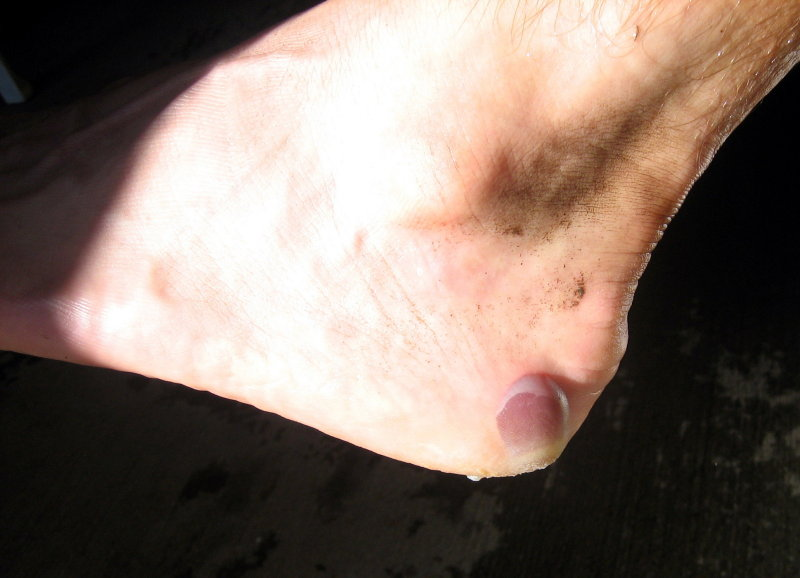 blood blister
