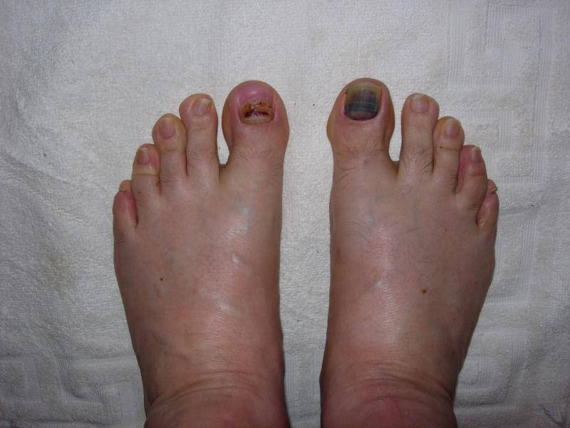So is my toenail gonna fall off? (pic of purpleness)