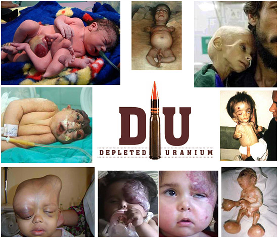 Depleated uranium and birth defects in children