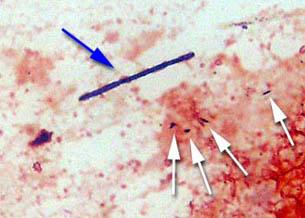 Megabacterioza