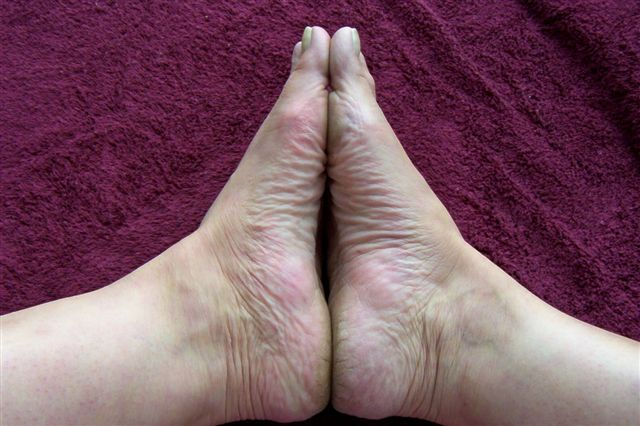 rashes on top of feet