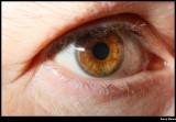 Eye rapture