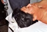 Moxibustion und Akupunktur, Beijing
