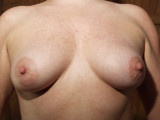 Breast Breast 060
