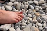The Hot Stone Treatment