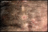 SCALP FOLLICULITIS_DISSECTING CELLULITIS OF THE SCALP_02.jpg