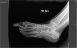 Jackie's Ankle - no broken bones, just a bad sprain
