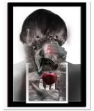 Spinal Nerve Decompression