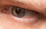 Eyeball 0012 (V75)
