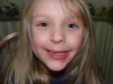 Hey all welcome to my 5 to 10 yr cleft site. If you want to see my 0-5 years click here  http://www.pbase.com/stella97king/cleft_lip