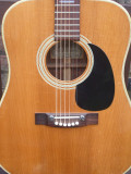 Solid Spruce Top (Gary)