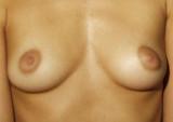 Breast Breast 007