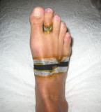 toe taped into slight plantar flexion