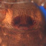 Amaurobius borealis (female epigynum)