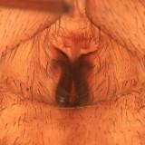 Agroeca ornata (female epigyne)