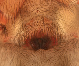 Callobius bennetti (female epigyne)
