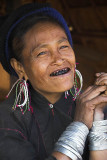 Eng woman shows off her blackened teeth, Myanmar