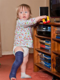 Callum's Broken Leg